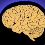 BrainID-10034494R
